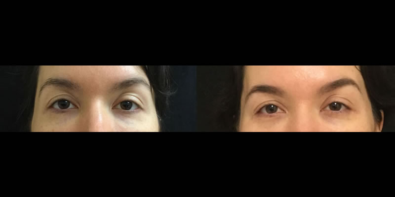30 female restylane under eye before after 1syr SQ