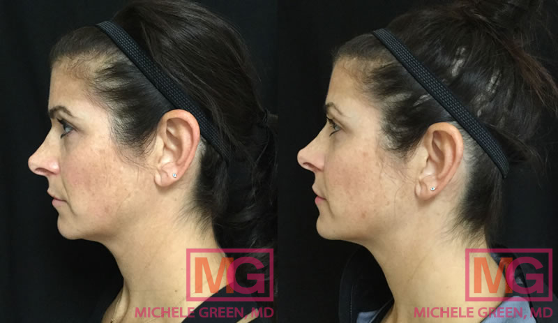 37 year old female treated with Dysport & Restylane Refyne