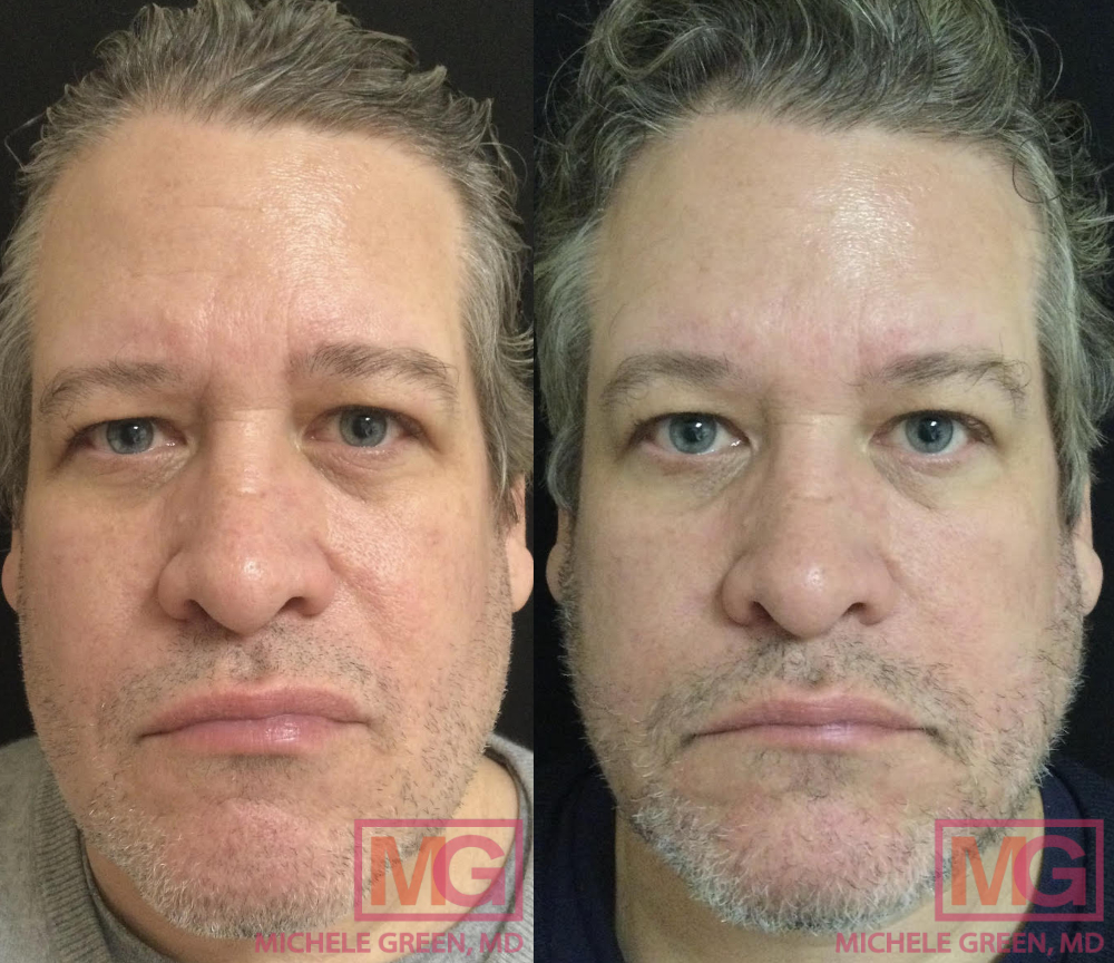 BR Before and after Botox and 3 VBeam MGwatermark