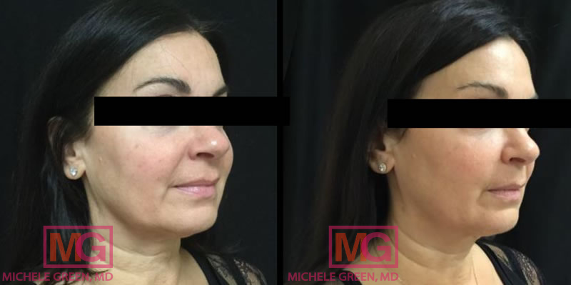 35-44 year old woman treated with Kybella, Fraxel, & Botox (forehead, glabella & crows feet)
