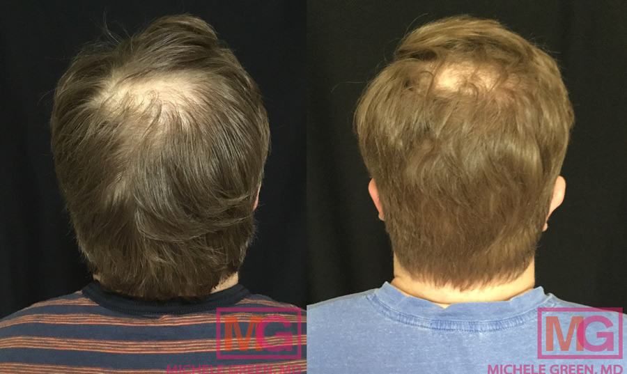 Male with PRP treatment on hair – 7 months