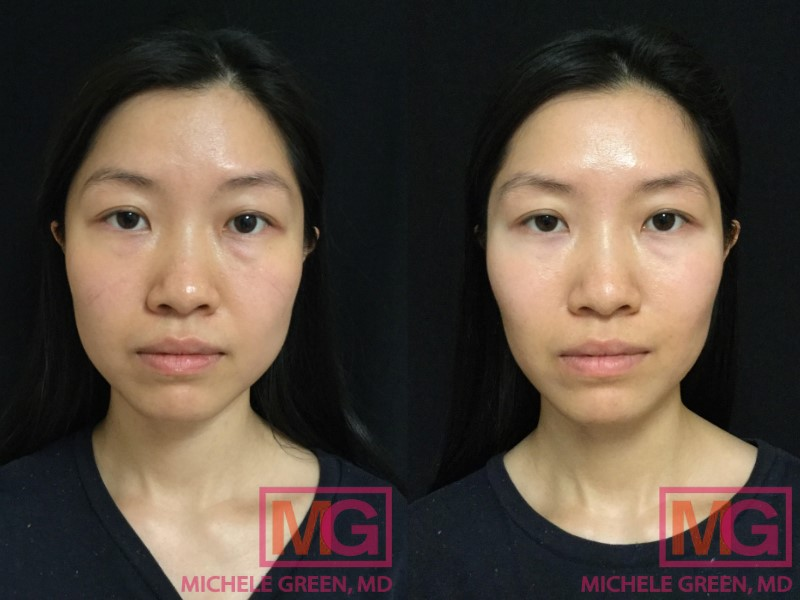 Botox, Masseter area, 2 weeks post injection
