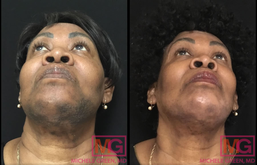 Female - 60's: Before and after Chemical Peel (2 treatments)