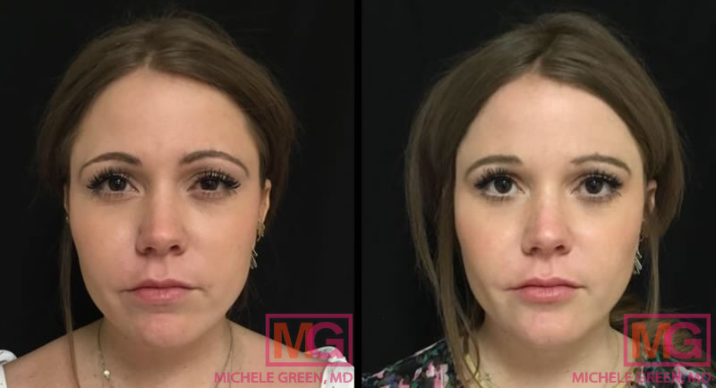 Botox eyes lines glabella and chin ultra plus FRONT