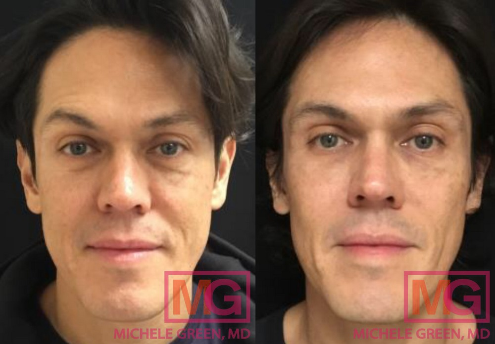 50 year old male - Restylane treatment under eyes