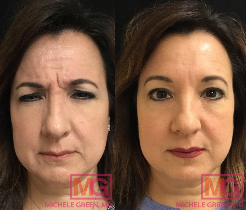 55 year old, Botox for Glabella area, 2 weeks