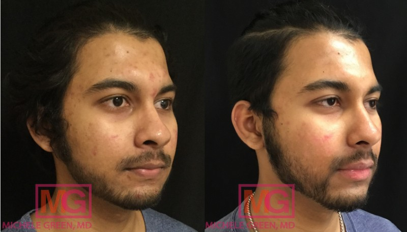 23 year old, 6 Months before and after Accutane