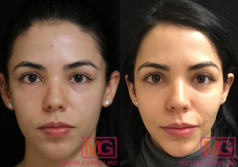 SG 27 5 month Before and After Microneedling with PRP 4 sessions MGWatermark