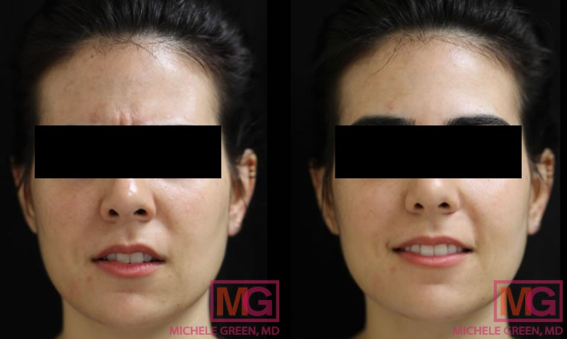 35 year old treated with Botox injections (Forehead, Glabella & Crows feet)