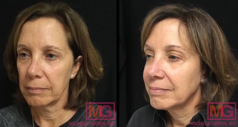 55-64 year old woman treated with Juvederm Voluma for cheeks