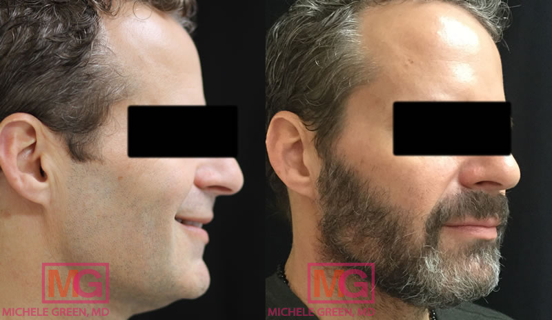 45-54 year old male treated with Thermage & Kybella